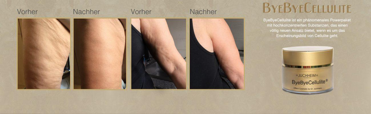 ByeBye Cellulite Behandlung für Ihre Beauty und Dr. Juchheim Produkte im Palm Beach Studio - Dieses phänomenale Powerpaket enthält hochwirksame Aktivstoffe und entfaltet eine 3D-Wirkung zur Verbesserung des Erscheinungsbilds von Cellulite.