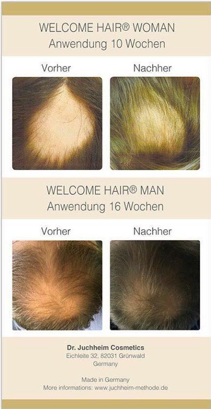 Welcom Hair Men für Männer: Haarverlust, Haarausfall, für volleres Haar, bei Glatzenbildung