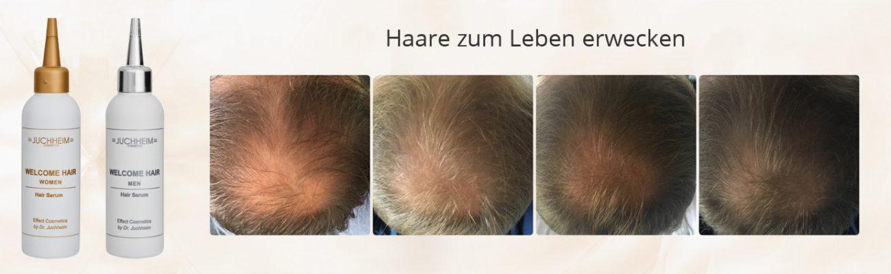Intensives Haarserum mit natürlichen Wirkstoffen - Beratung, Dr. Juchheim Produkte und Kauf bei Palm Studio in Pfäffikon bei Zürich