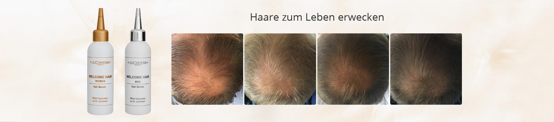 Intensives Haarserum mit natürlichen Wirkstoffen - Beratung, Dr. Juchheim Produkte und Kauf bei Palm Studio in Pfäffikon bei Zürich Haarwachstum, Haarserum, Glatzenbildung, schütteres Haar, Haarserum gegen Haarausfall,